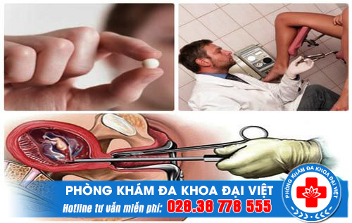 Đình chỉ thai nghén theo tuần thai bằng các phương pháp thích hợp