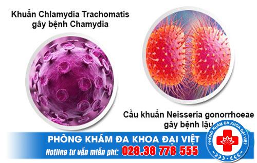 Xét nghiệm bệnh Chlamydia bằng cách nào chính xác nhất và ở đâu TPHCM