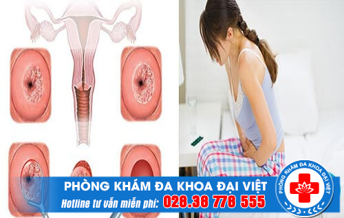 Biểu hiện của viêm cổ tử cung nặng.