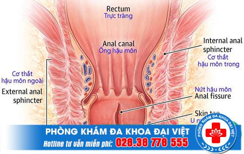 Phương pháp điều trị hậu môn trực tràng tại quận 3.