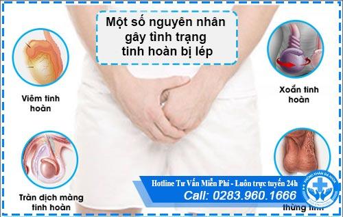 Tư vấn điều trị hội chứng tinh hoàn bị lép ở nam giới